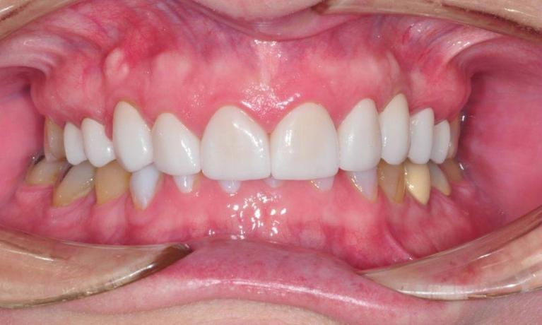 Full-Mouth-Restorations-After-Image