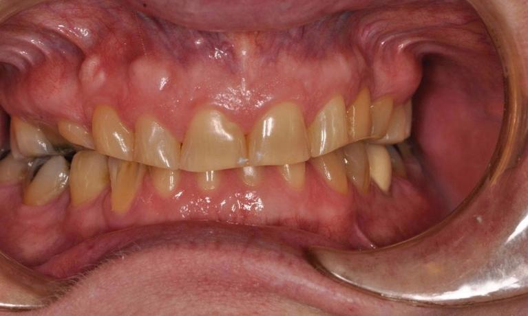 Full-Mouth-Restorations-Before-Image